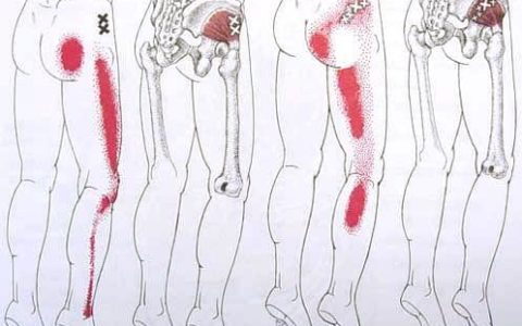 Sciatica and leg pain